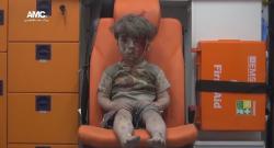 Siria: Imaginile cu băiatul în vârstă de 5 ani, rănit în urma unui atac aerian la Alep, fac înconjurul lumii